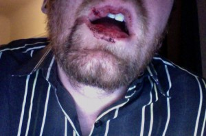 eric barry face punch bloody lip